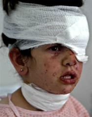 agirl injured in tyre sunday reuters